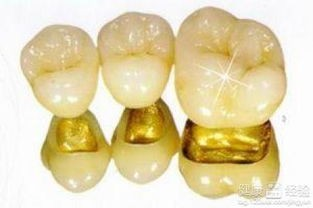 金鈀烤瓷牙