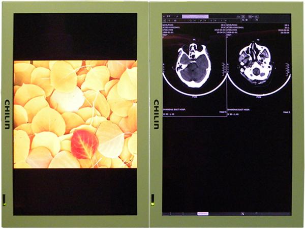 上海东方医 院手术室采用睿观博光传