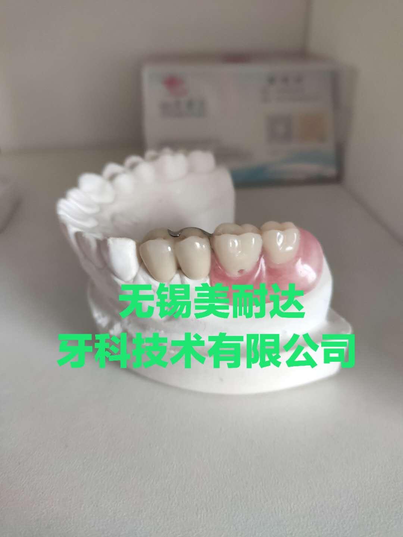 局部可摘义齿
