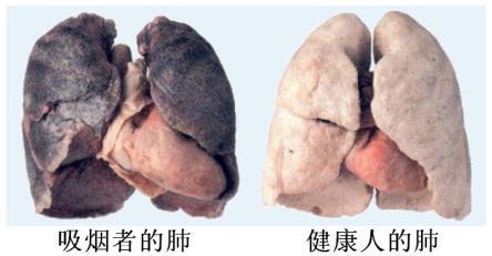 经常吸咽的人,试试用吸氢机吸氢能减轻肺部伤害!