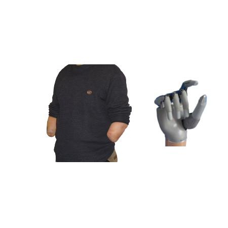 Electric KS-Bionic Hand