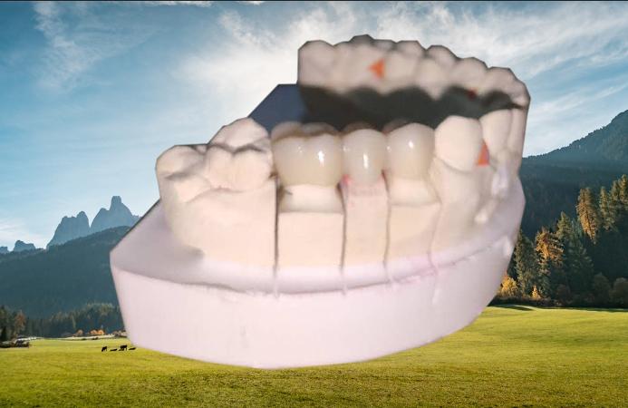 美耐達氧化鋯全瓷牙