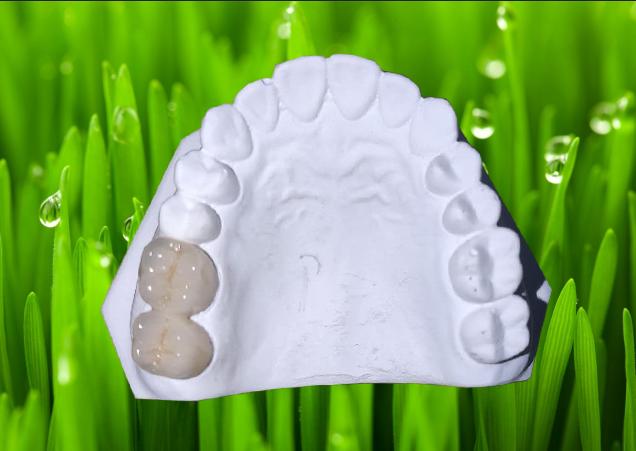 美耐達金屬烤瓷牙
