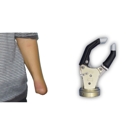 Electric Hand With One Degree Of Freedom and Passive Wrist Rotation For Wrist Disarticulation