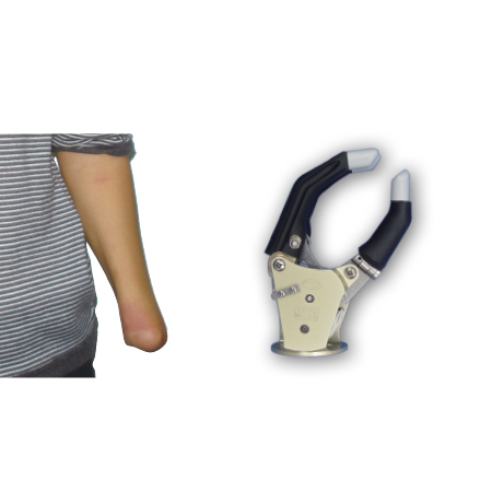Electric Hand With One Degree Of Freedom For Wrist Disarticulation