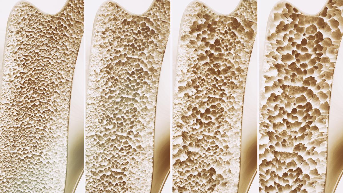 除了吃鈣片,富氫水杯也能提前預防骨質疏松!