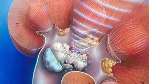 肾结石2.jpg