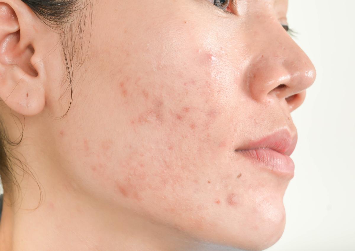 青春痘烦恼?氢水洗脸对改善皮肤有效果!