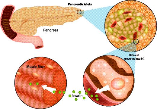 氢与糖尿病!降血糖、防治糖尿病及致命并发症...